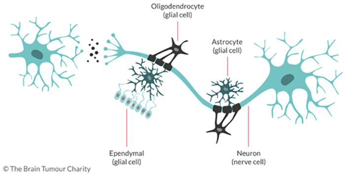 Brief Introduction of Oligodendroglioma