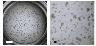 Research Progress of Alveolar Epithelial Type II Cells in Idiopathic Pulmonary Fibrosis